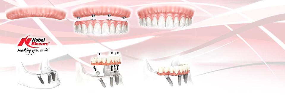 all on four implantologia a carico immediato - avellino studio dentistico dargenio