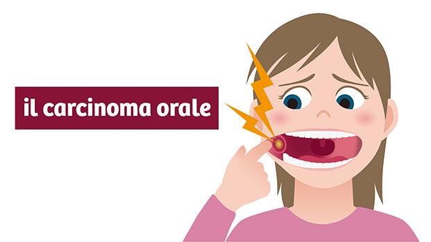 il carcinoma orale