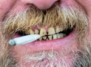 Fumo e danno parodontale:  tabacco fa perdere  gli elementi dentari