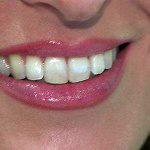 Dal bianco splendente alle faccette, il sorriso perfetto si crea al computer