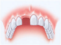 implantologia dente singolo  - avellino studio dentistico dargenio