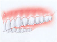 implantologia denti multipli  - avellino studio dentistico dargenio
