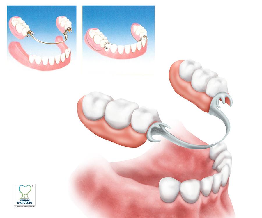 Protesi removibile - Dentista Avellino