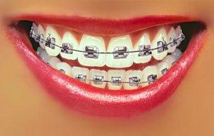 ortodonzia-fissa-avellino-studio-dentistico-dargenio-1