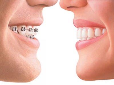 ortodonzia-fissa-avellino-studio-dentistico-dargenio