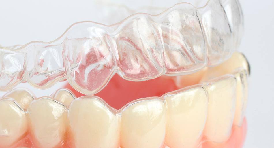 ortodonzia-mascherina-invisibile-mobile-avellino-studio-dentistico-dargenio