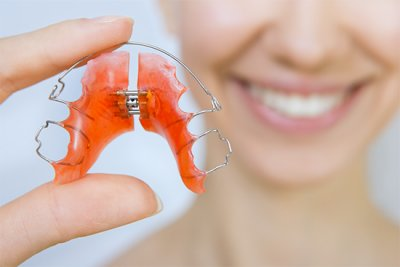 ortodonzia-mobile-avellino-studio-dentistico-dargenio