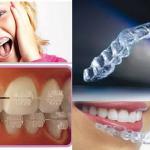 ortodonzia- mobile-ortodonzia- invisibile-ortodonzia-fissa-attacchi-avellino-studio-dentistico-dargenio