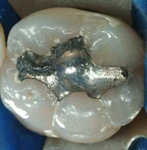rimozione amalgama argento avellino studio dentistico dargenio