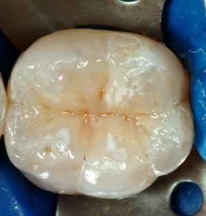 otturazione estetica bianca avellino studio dentistico dargenio