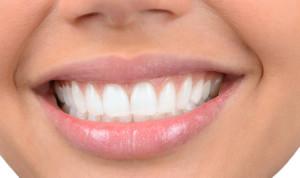 Dal bianco splendente alle faccette, il sorriso perfetto si crea al compute